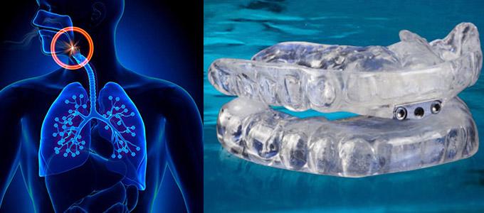 sleep apnea dentist in hoover al