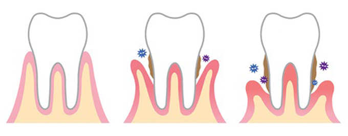 Periodontal Disease, How it Effects Your Overall Health