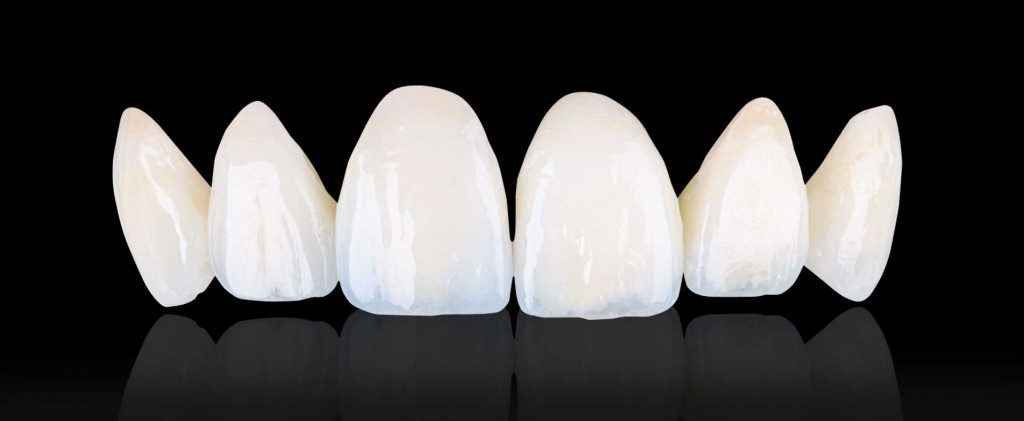 What to Look for When Getting a Crown / Veneer